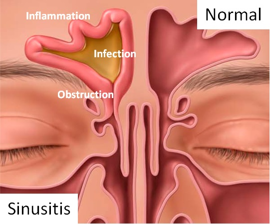 The Common Cold Or A Sinus Infection   Health Plus