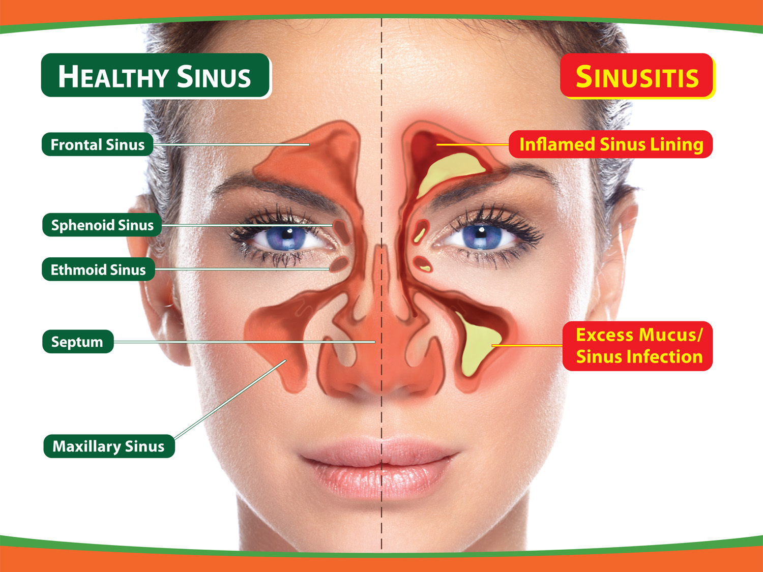 Sinusitis in the child: signs of the disease